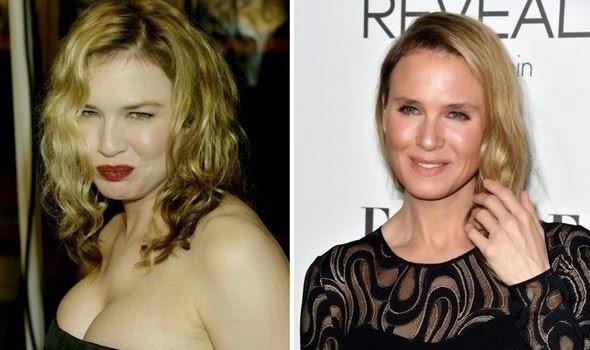 Transformación en la cara de la actriz Renée Zellweger