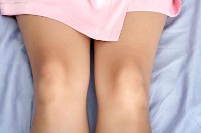 Cara Memutihkan Siku Dan Lutut