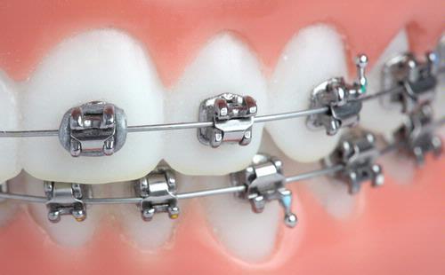 cara+merawat+kesehatan+kawat+gigi+atau+behel.jpg