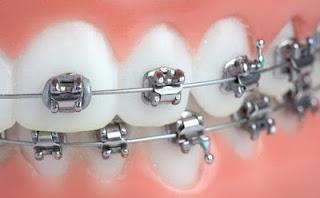 9 Tips Menjaga Kesehatan Pengguna Kawat Gigi atau Behel
