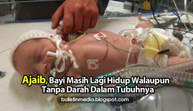 Ajaib Bayi Masih Lagi Hidup Walaupun Tanpa Darah Dalam Tubuhnya