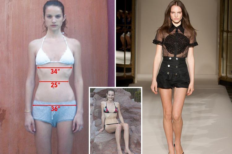 Τα μοντέλα καταγγέλλουν τις σαδιστικές πρακτικές του κόσμου της μόδας.