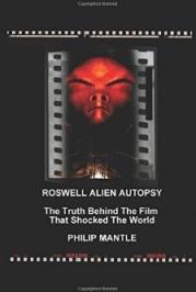 Roswell Alien Autopsy