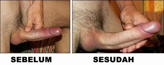 Hasil Vimax Pembesar Penis