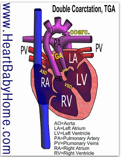 Kalvin's Heart