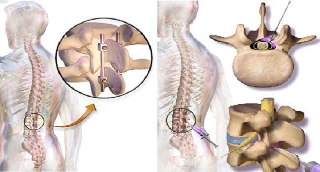 Spinal Disc Degeneration Facts
