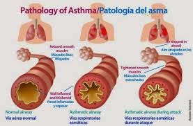 Cara Mengobati Penyakit Bengek (Asthma Bronchiahas) secara Alami