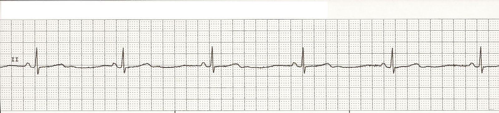 Float Nurse: EKG Rhyth...