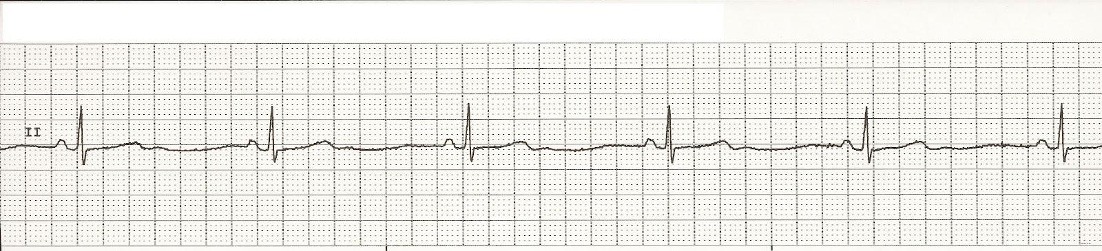 Sinus Bradycardia - EKG
