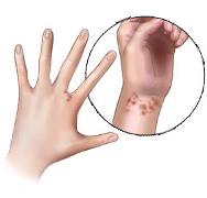 Scabia: cauze, simptome, tratament