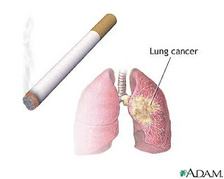 http://www.women-health-info.com/651-Smoking-and-cancer.html