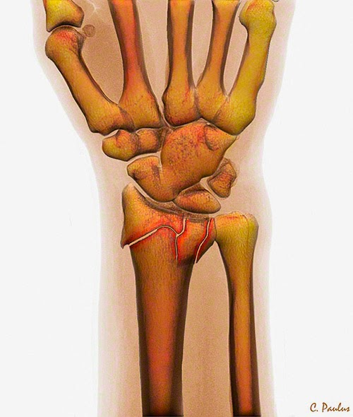 3-D Color HD X-Ray showing a Fracture of the distal Radius