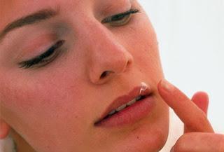 Online dating för personer med herpes