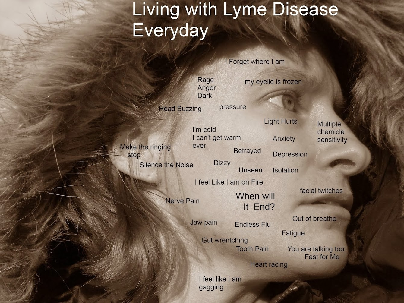 Overcoming Lyme