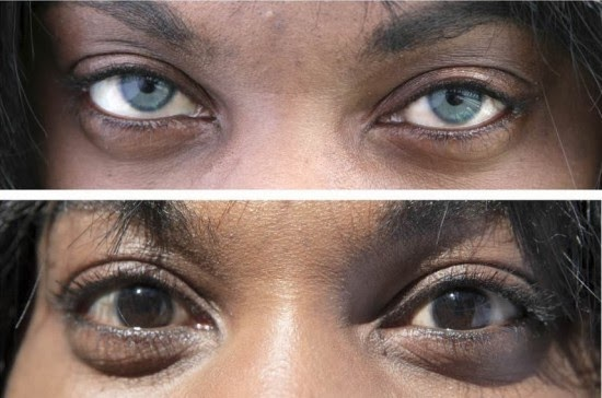 Controversial Artificial Iris Implant Surgery to Permanently Change Eye Color