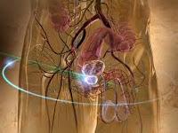 Alternativas Opciones de tratamiento de cancer de prostata / tratamientos tradicionales para el cáncer de próstata han estado disponibles desde hace muchas décadas . Ellos han demostrado ser eficaces, pero a menudo llevar con ellos el riesgo de efectos secundarios graves . Impotencia , incontinencia, quemaduras por radiación y la pérdida del cabello son sólo algunas de las consecuencias no deseadas.