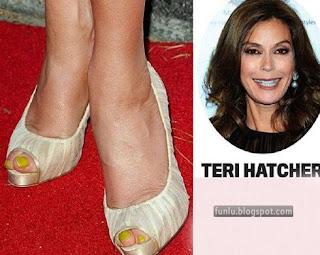 +Ugly feet celebrities+(12) Ugly Feet Of The Celebrities