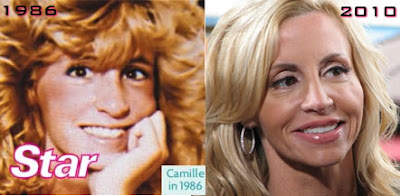 Camille Grammer Before After Plastic Surgery, Implants, Botox