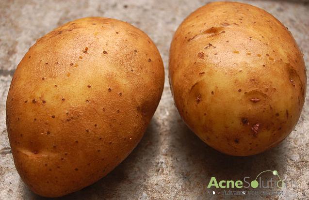 Cách trị mụn bọc từ khoai tây