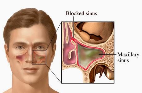 Obat Sinusitis Paling Ampuh