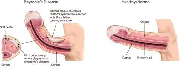 about cancer penile treatment surgery types