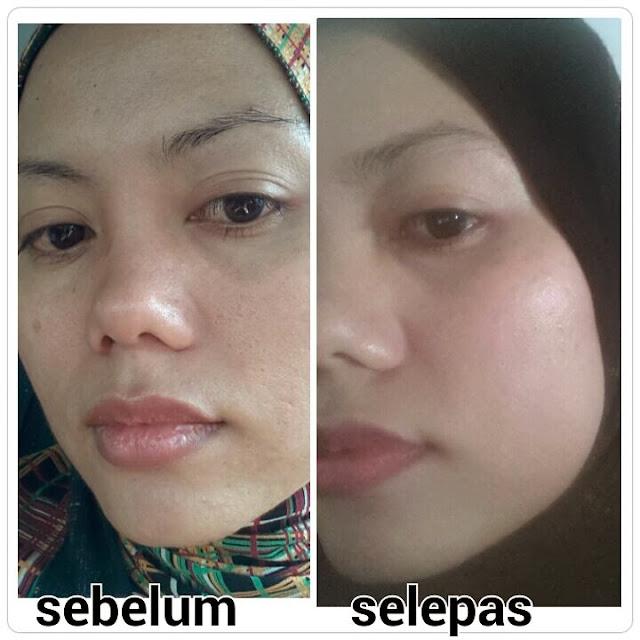 rawatan pori-pori terbuka, sun protection spf50