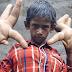 Bocah dengan Tangan Terbesar di Dunia