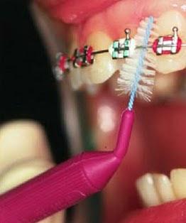 Sikat gigi khusus bagi pengguna behel