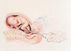 ABORTO: 55 PREGUNTAS Y RESPUESTAS