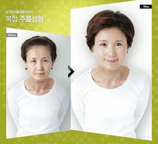 Perubahan Drastis Wajah Orang Korea Setelah Operasi Plastik