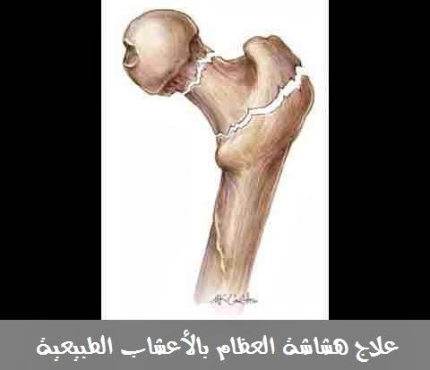 علاج هشاشة العظام بالأعشاب الطبيعية