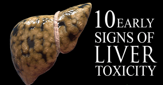 10 Early Signs of Liver Disease – What to Look Out For
