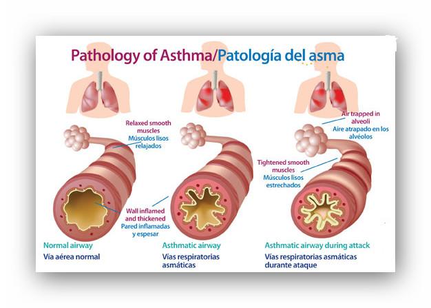 asma el asma es una enfermedad inflamatoria crónica que produce ...