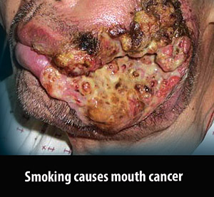 Mouth cancer caused by smoking
