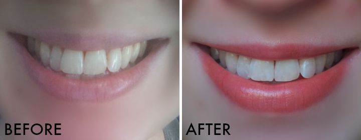 Crest 3D White Brilliance Toothpaste System before and after
