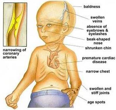 Progeria Baby Adalia Rose