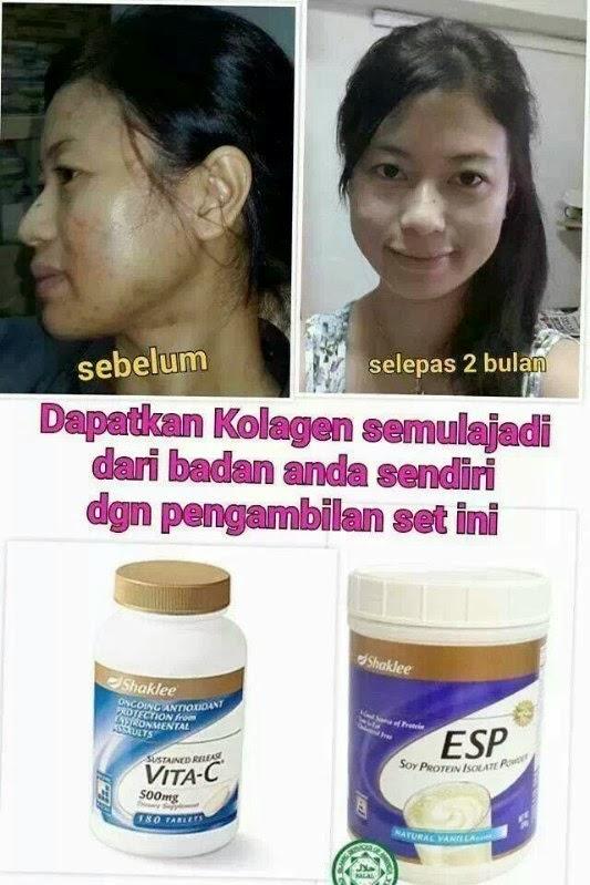 kulit cantik dengan ESP dan vita c
