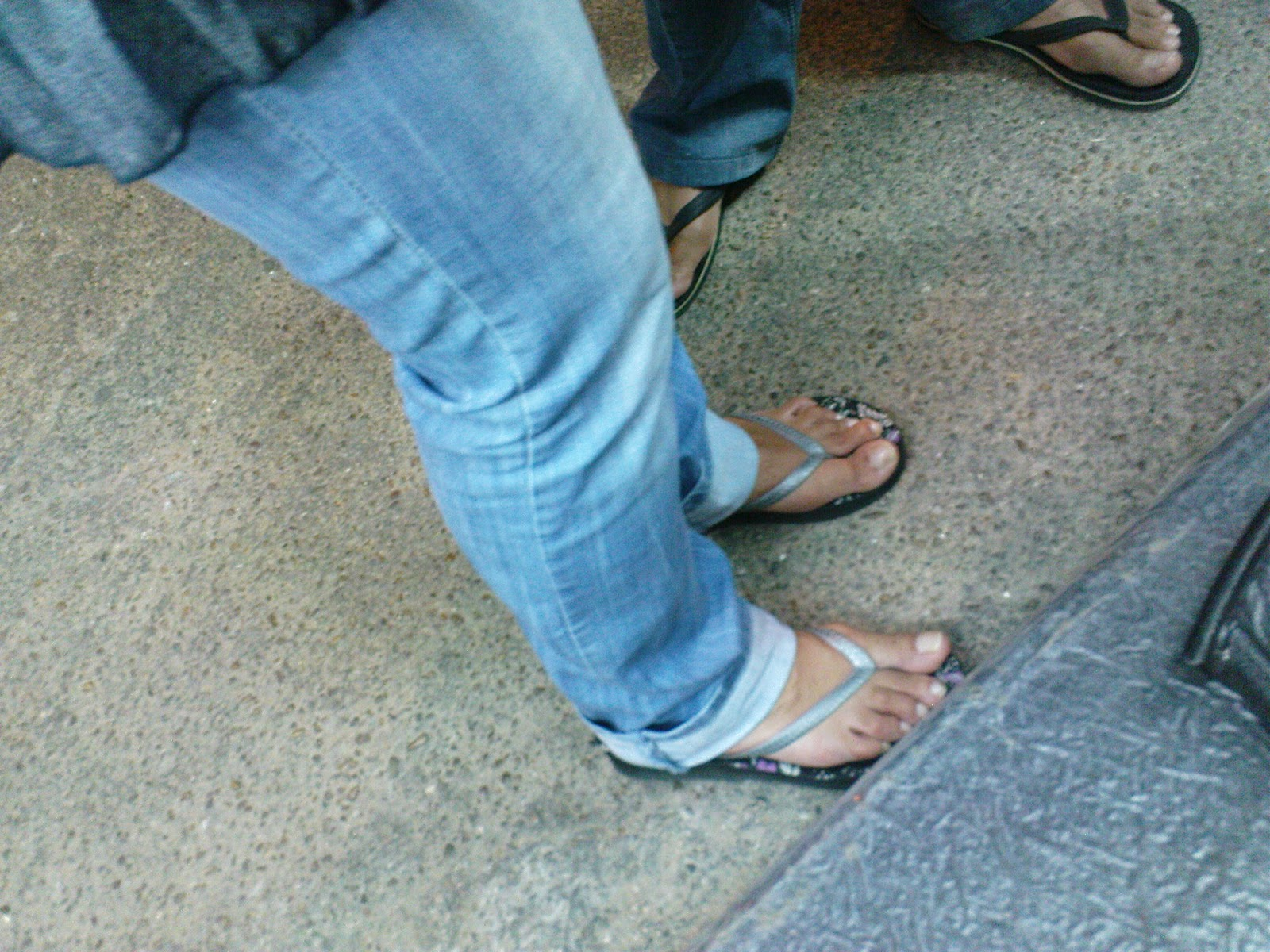 Legs And Feet On The Street Bunions In Chuncky Flip Flops