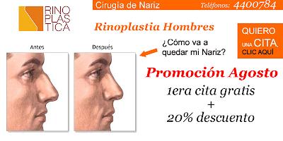 Rinoplastia laser, rinoplastia peru, rinoplastia lima, rinoplastia