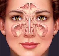 pengobatan herbal sinusitis