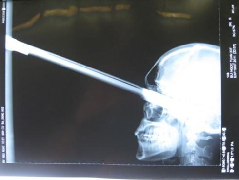X-ray Lelaki ditusuk pedang ke dalam mata