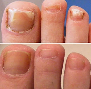 Nail fungus Treatment Zetaclear