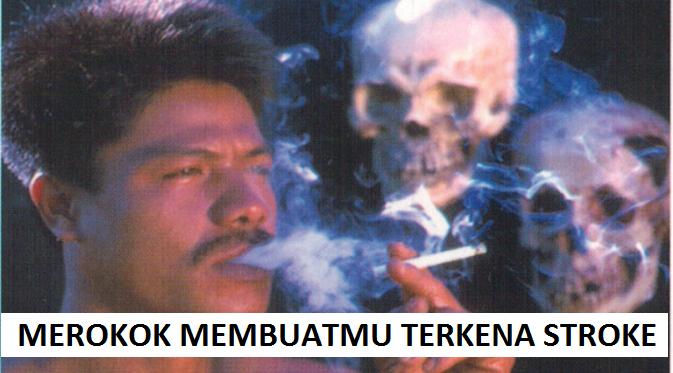 Merokok Dapat Menyebabkan Penyakit Stroke