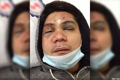 photo of Vhong Navarro beaten up