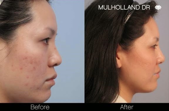 Acne Scar Reduction Treatments in Toronto