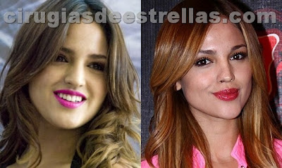 eiza gonzalez antes y despues