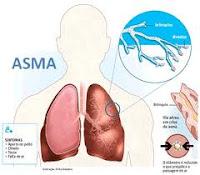 Terapi Pengobatan Asma
