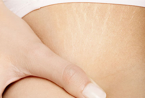 how to get rid of white stretch marks on shoulders