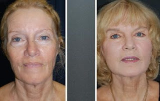 Facial yoga: the new botox