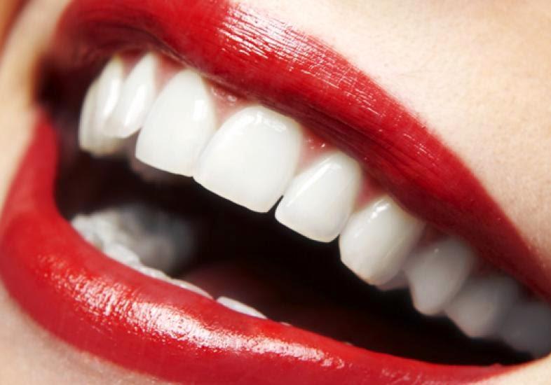 Dentes mais bonitos